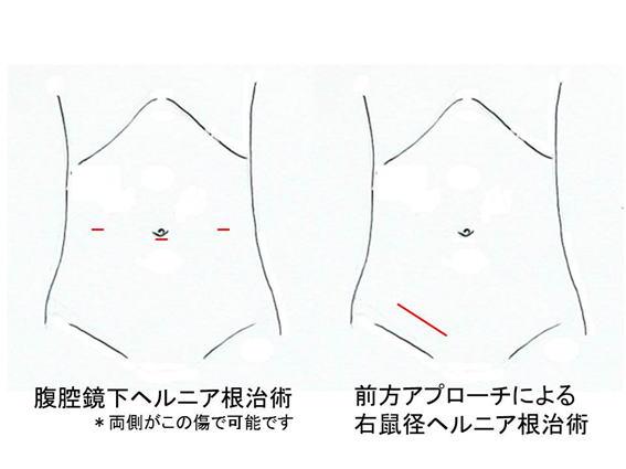 腹腔鏡下鼠径ヘルニア根治術(TAPP法)