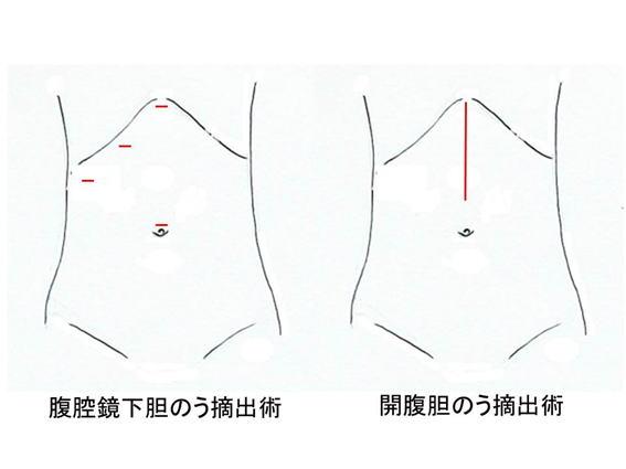 腹腔鏡下胆のう摘出術