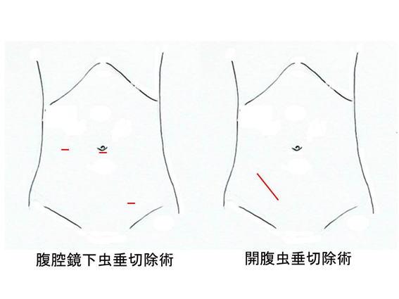 腹腔鏡下虫垂切除術